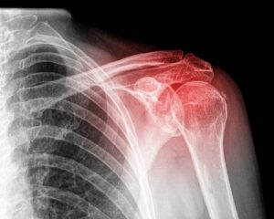 shoulder-pain-personal-injury